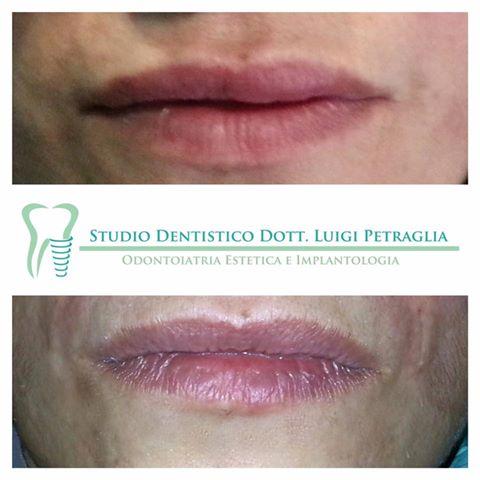 Ripristina il tono e la definizione delle labbra utilizzando dei prodotti naturali
