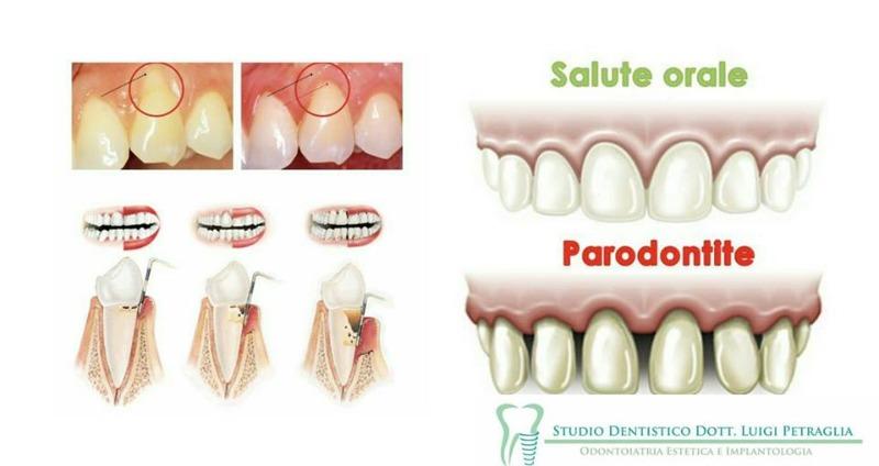 Tecniche di cura del parodonto