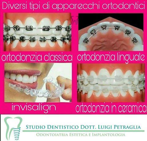 Pronti a soddisfare tutte le tue esigenze per allineare i tuoi denti e donarti un sorriso perfetto