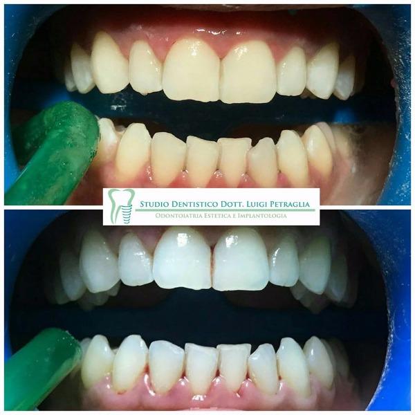 Caso clinico: Igiene dentale professionale e sbiancamento click BLANCONE