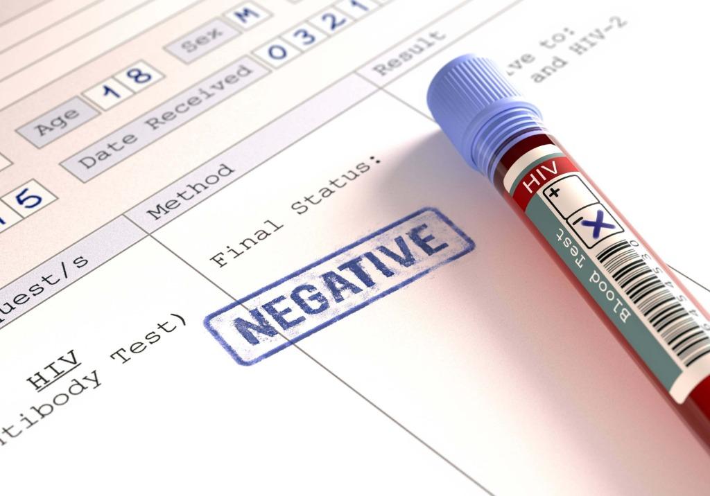 Dati allarmanti a Salerno: oltre 450 pazienti sieropositivi
