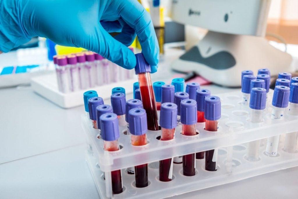 Coronavirus: donna positiva nel salernitano