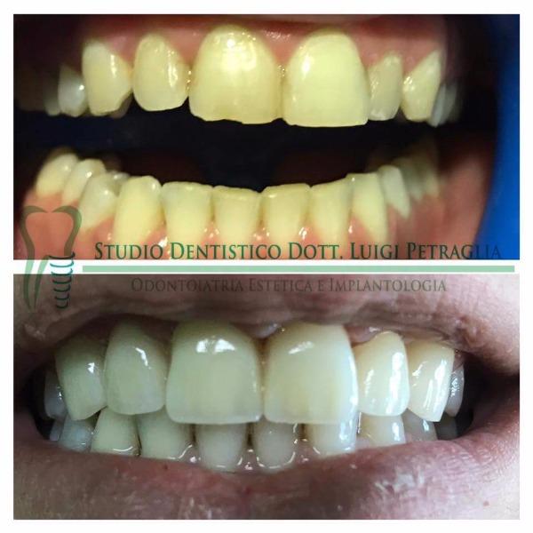 Caso clinico: Zirconio-Ceramica superiore, Sbiancamento arcata inferiore