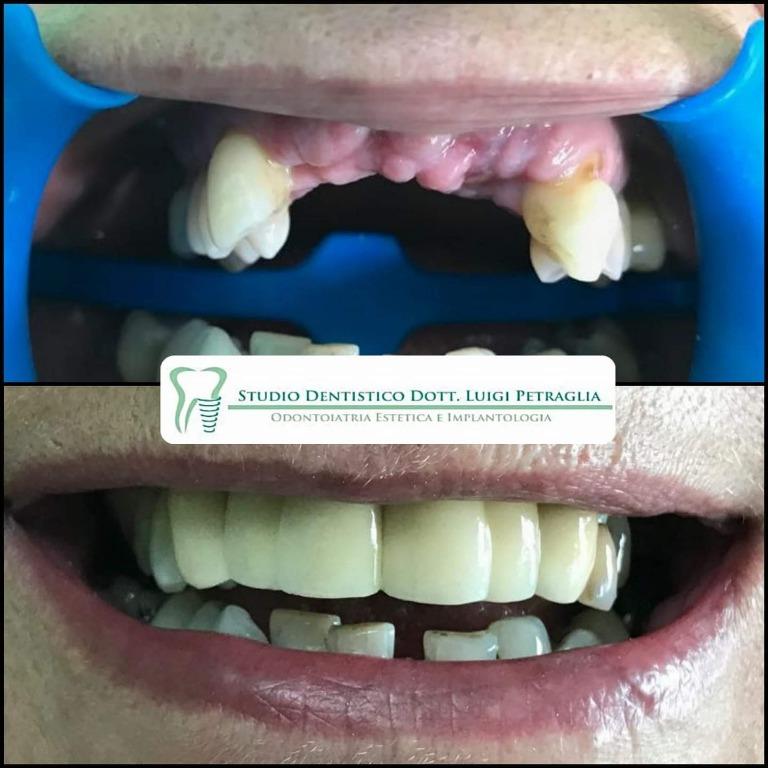 Caso clinico: Riabilitazione frontale mista impianti ed elementi dentari.