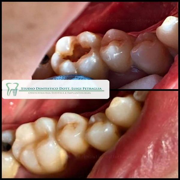 Ricostruzione diretta in composito dell elemento 46 trattato endodonticamente in precedenza.