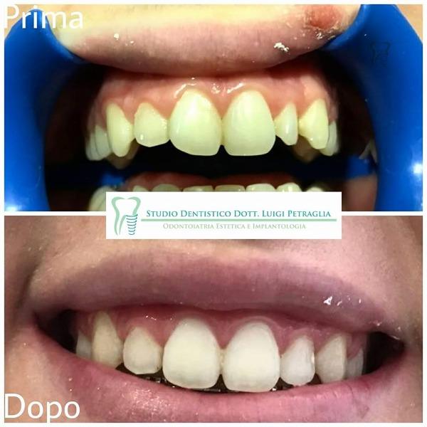 Terapia ortodontica con ortodonzia fissa dell'arcata superiore.