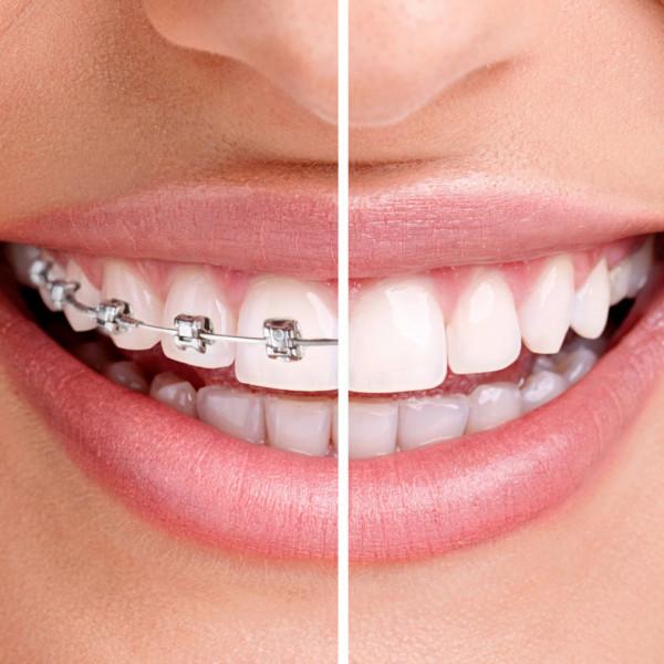 Ortodonzia #dentista #dental #studiodentisticopetraglia #capaccio