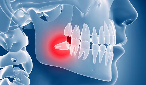 Risolviamo i problemi dei vostri denti #dentista #dental #dentalsmile